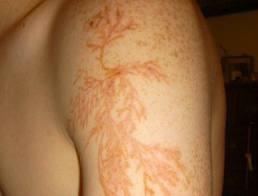Lightning pattern on mans arm
